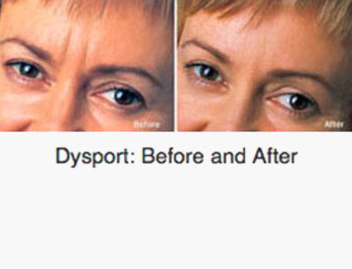 Goodbye to Double Chins with Kybella ® | Skin Associates of South