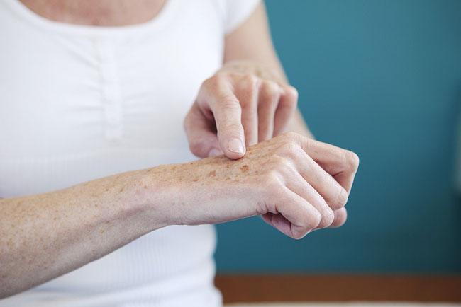 age spots dermatologist
